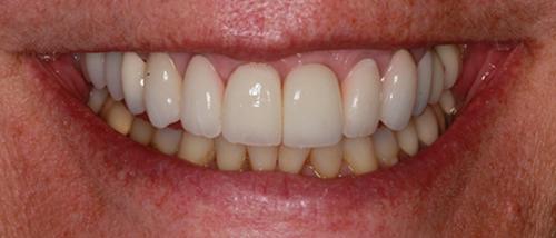 Dentist Nashua