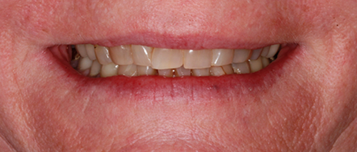 Nashua NH Dentist