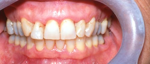 Dentist Nashua NH