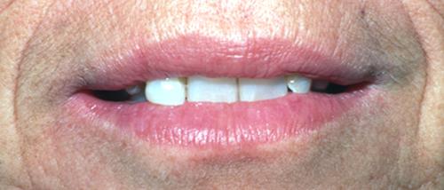 Dentist in Nashua NH