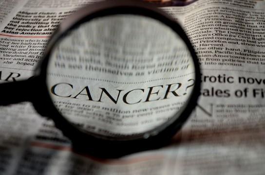 Oral Cancer Risk Factors | 03062 Dentist